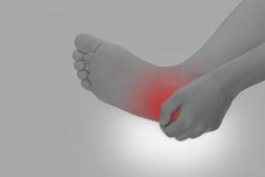 足底筋膜炎1