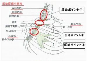 胸郭出口症候群2