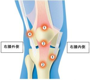 膝蓋靭帯炎2